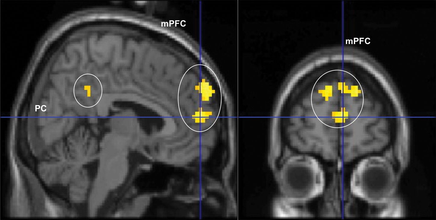 A front and side scan from an MRI showing activation (in yellow) in the prefrontal cortex.